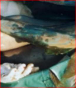 De tas met de ledematen (links is de hand van Bont te zien)