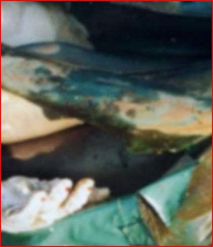 prostitutie delfzijl